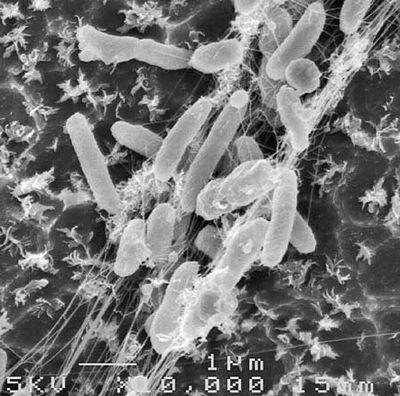 イデオネラ・サカイエンシス201-F6はペットボトル分解細菌!